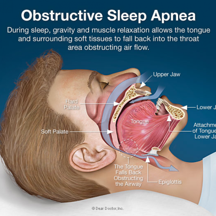 Can snoring be surgically treated? Can apnea be treated?